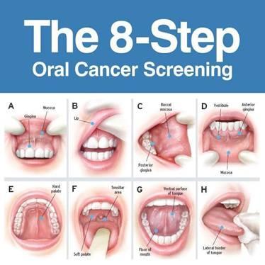 hpv oropharyngeal cancer screening cancer pulmonar fara simptome