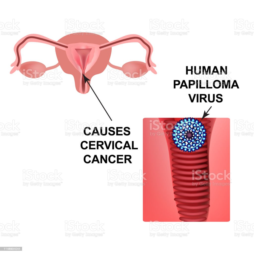 hpv virus leads to cancer hpv laryngeal papillomatosis