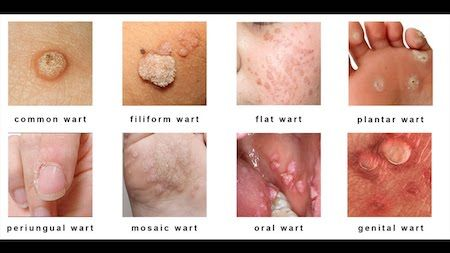 hpv warts flare up)