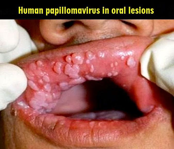 human papillomavirus infection in mouth