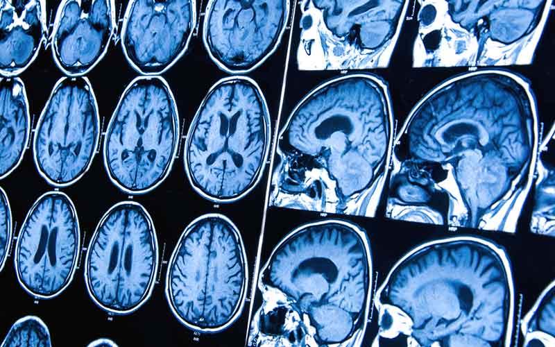cancer cerebral tiene cura