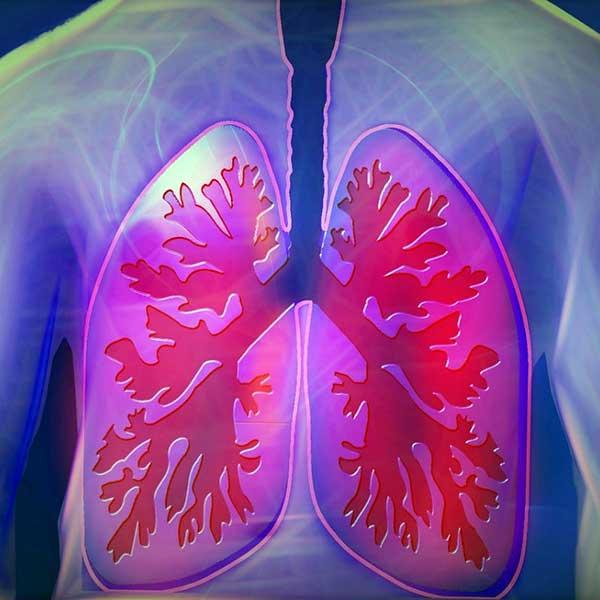 cancer pulmonar speranta de viata)
