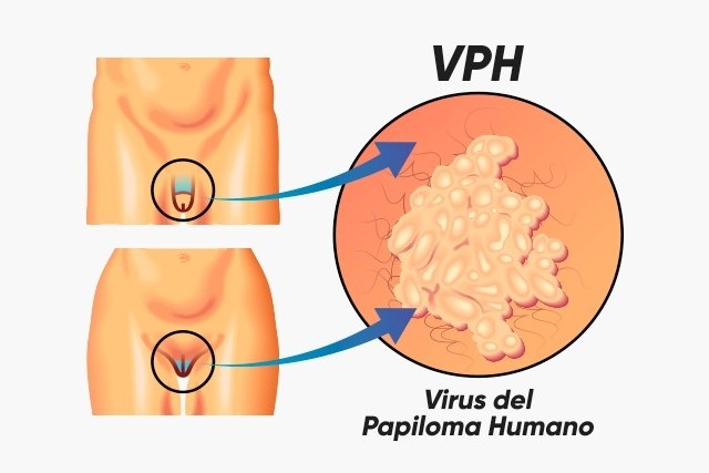 virus del papiloma humano una mujer)