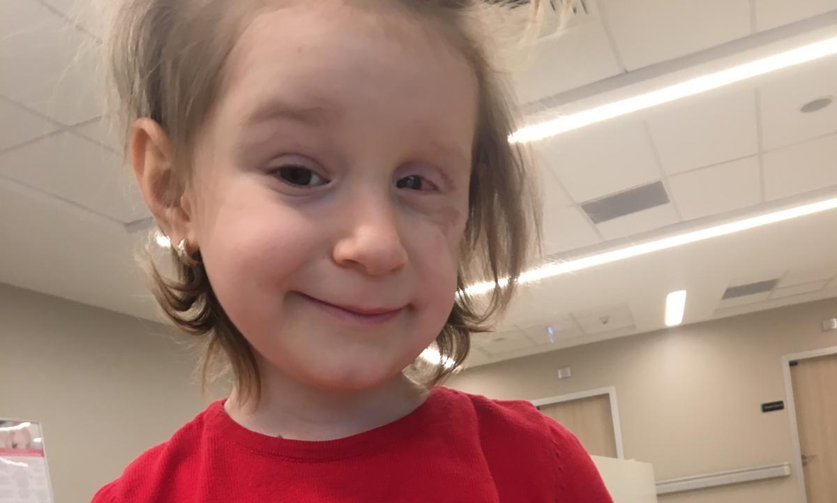 cancer la ochi la copii ciuperci de piele