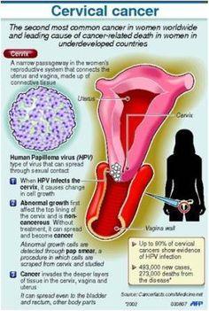 human papillomavirus in ovarian cancer)