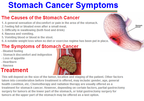 gastric cancer early signs)