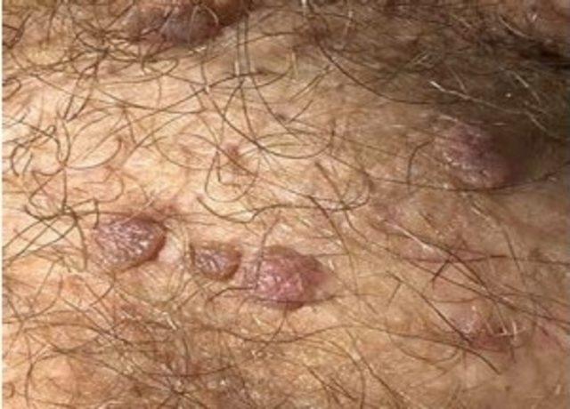 human papilloma virusu nedir)