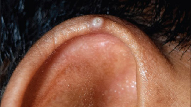 cancer on tip of ear)