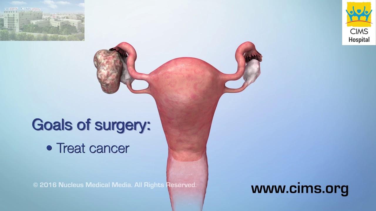 ovarian cancer kya hai