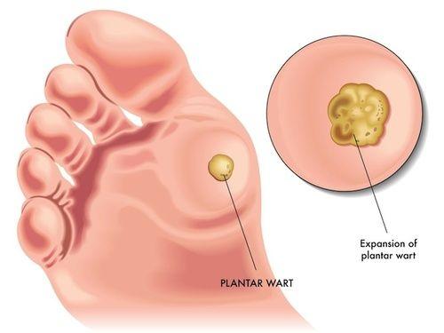 papilloma virus e verruche plantari plasturi pt detoxifierea organismului
