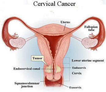 hpv tumore cervice uterina)