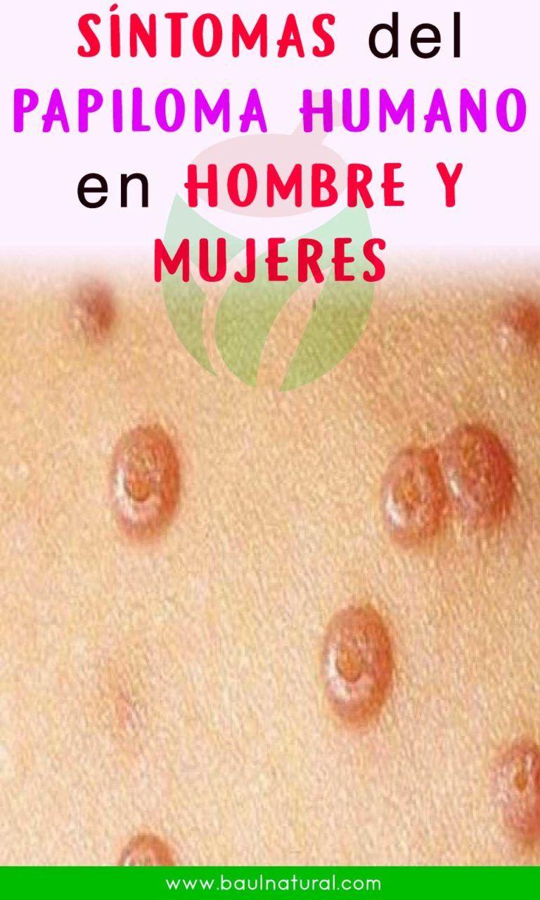 virus papiloma humano primeros sintomas oxiuros sintomas en mujeres