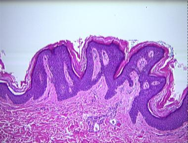 confluent and reticulated papillomatosis pathology)