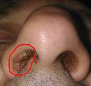 nasal vestibule papilloma