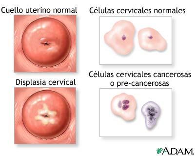 virus del papiloma humano en el embarazo