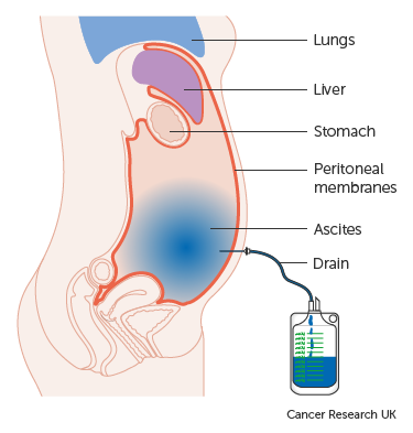 peritoneal cancer last stages)