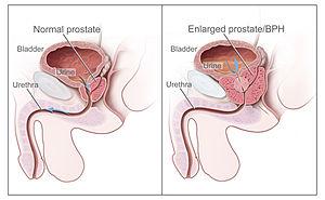 cancerul uretral