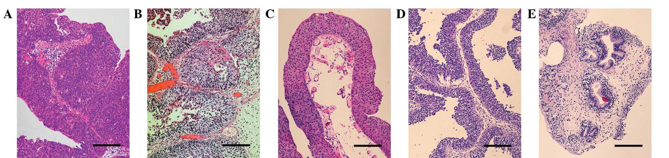 eozinofile crescute paraziti rimedi naturali per ossiuri negli adulti