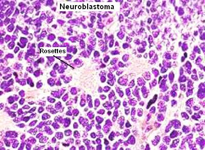 Anatomie Patologica