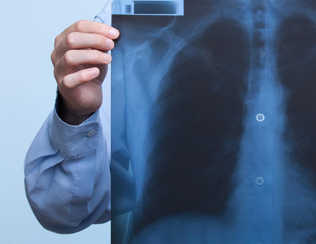 cancerul bronhopulmonar diagnostic detoxifiere plamani fumatori