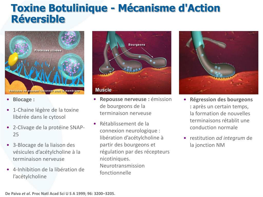 toxine botulique snap 25)