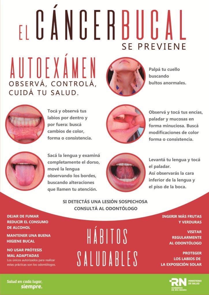 cancer bucal en argentina