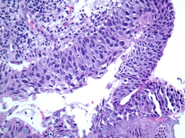 human papillomavirus pathology cancer tubo biliar