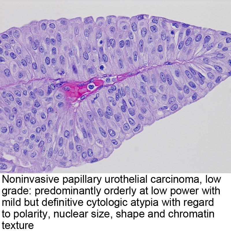 papillary urothelial carcinoma invasive icd 10