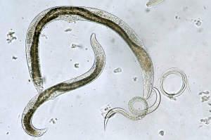 Scoate paraziti din organism în condiții de casă - Bactefort