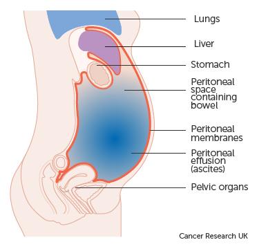 abdominal cancer symptoms female)