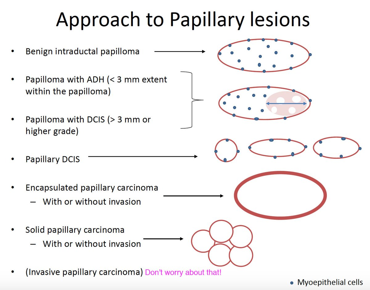 papillary lesion of breast