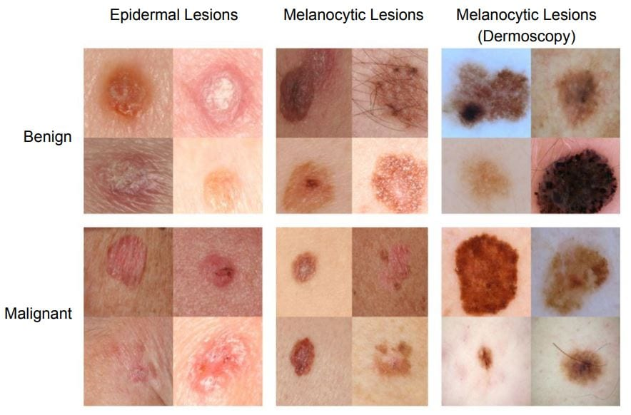 benign cancer stages