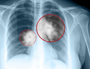 cancerul la plamani simptome)