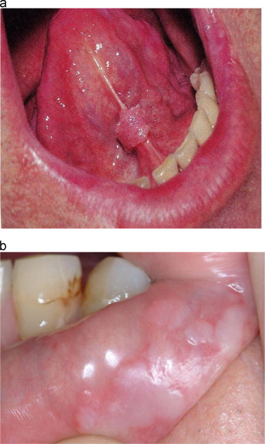 warts on mouth pictures