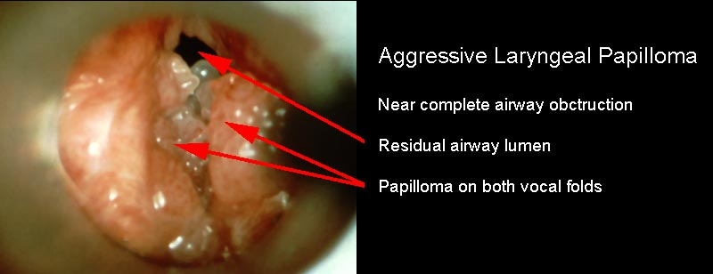 laryngeal hpv infection