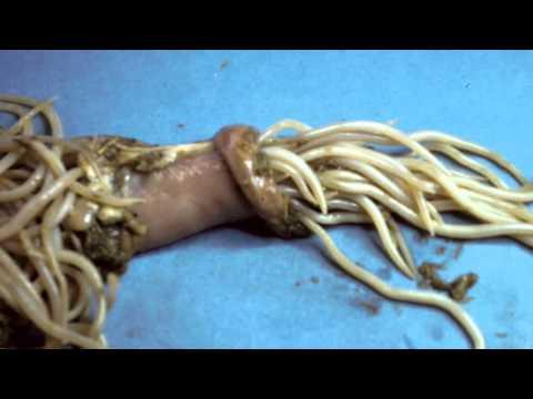 Mucus în fecalele unui adult - Analize -