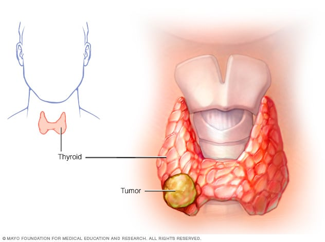 papillary thyroid cancer untreated