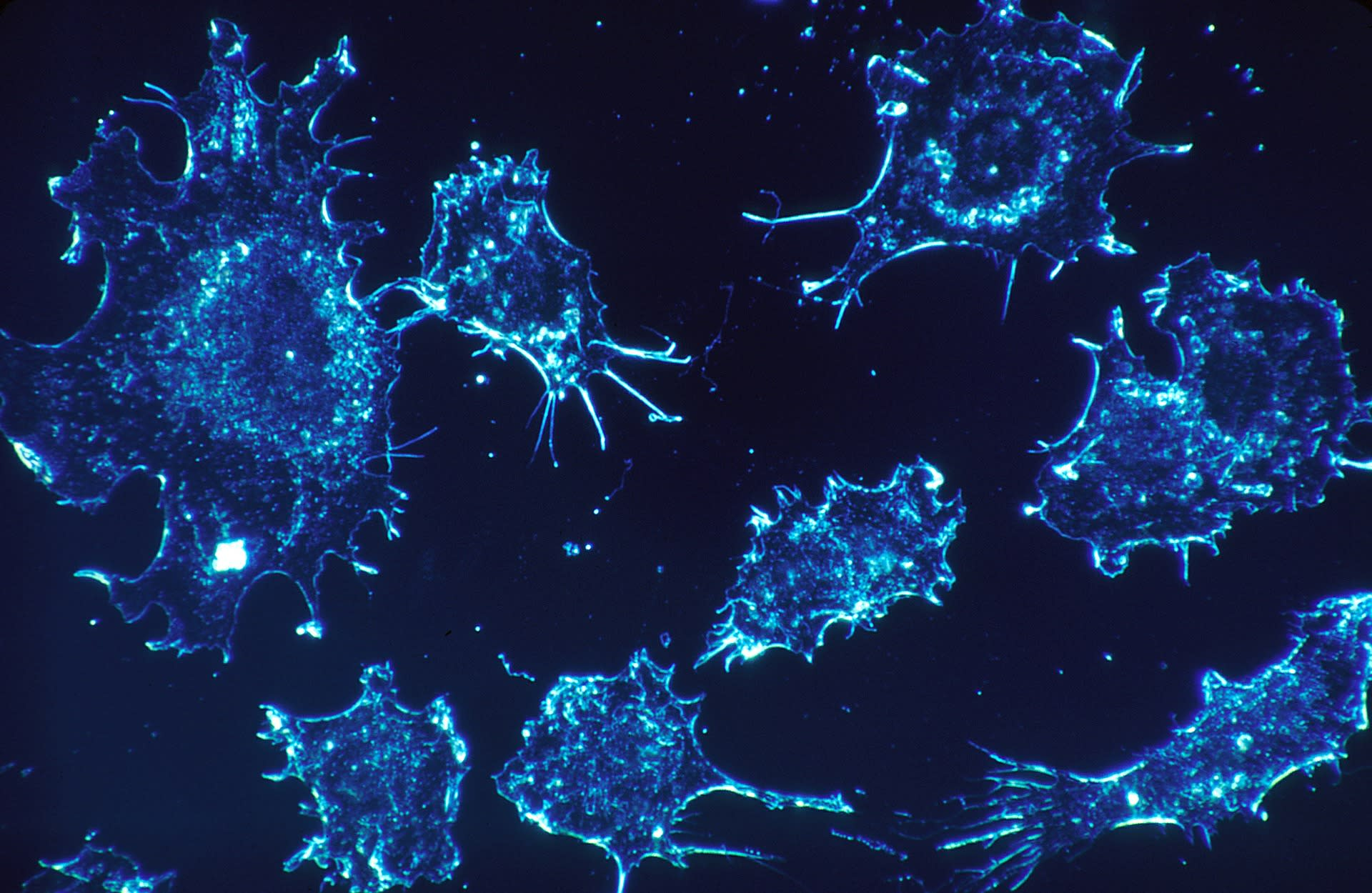 pancreatic cancer breakthrough 2019