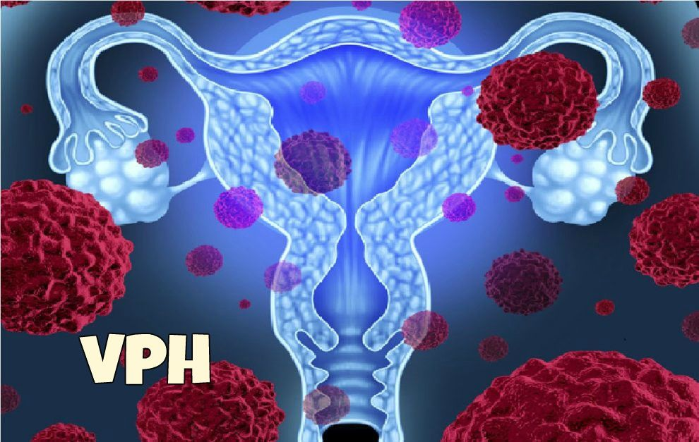 papilloma virus come si manifesta oxiuros tratamiento de eleccion