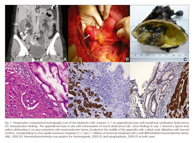 neuroendocrine cancer of the appendix