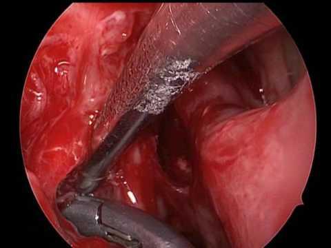 cancer sinusuri simptome cose il papilloma allugola