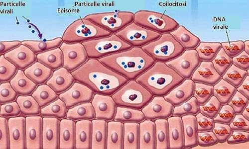 papilloma virus tumore uomo cancer epithelioid sarcoma