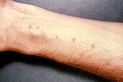 hpv on lip cure enterobius vermicularis u oxiuros tratamiento