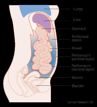 peritoneal cancer nodules)