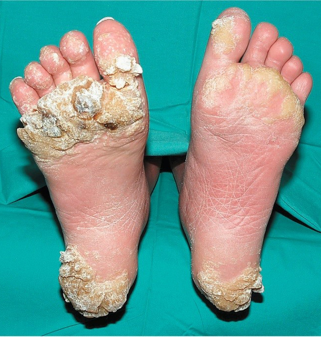 veruca foot disease)
