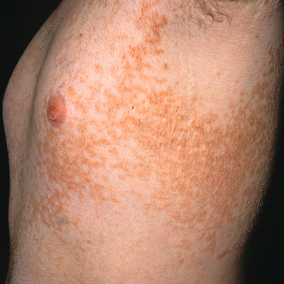 reticulated papillomatosis natural treatment)