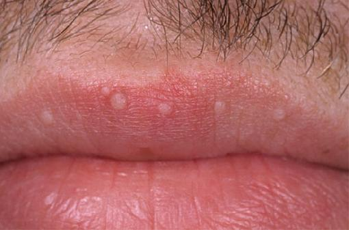 hpv warts on lips pictures)