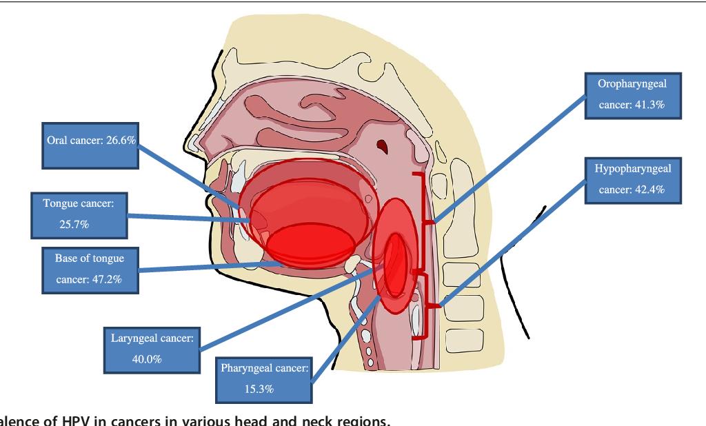 Efectele tratamentului pentru cancer asupra creierului - Chemo brain