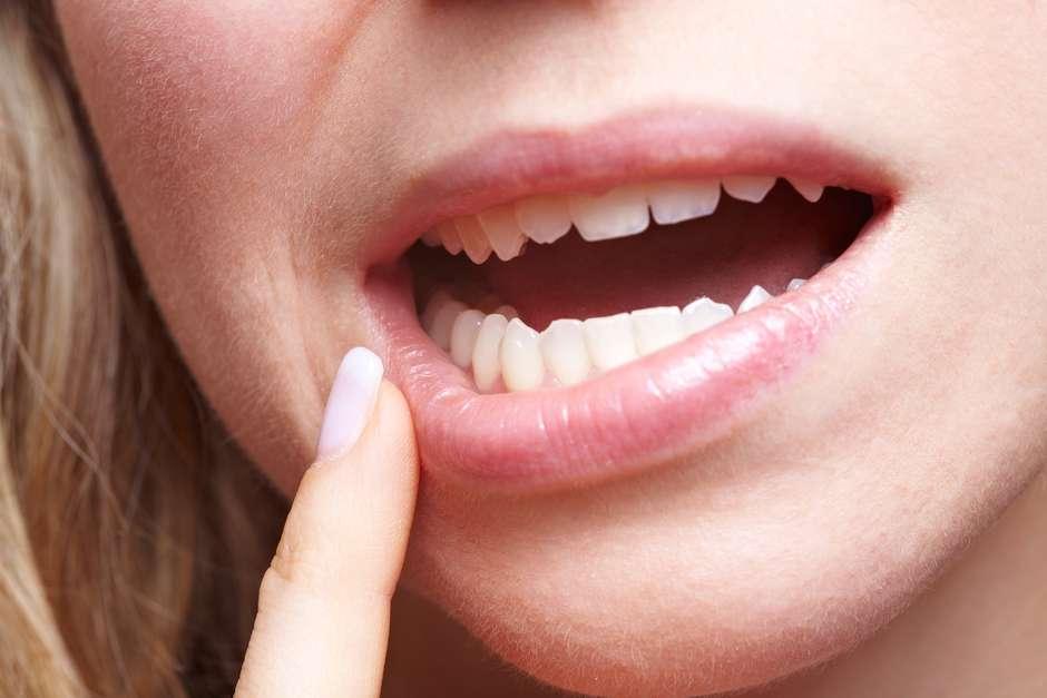 tratamiento de papiloma en boca)