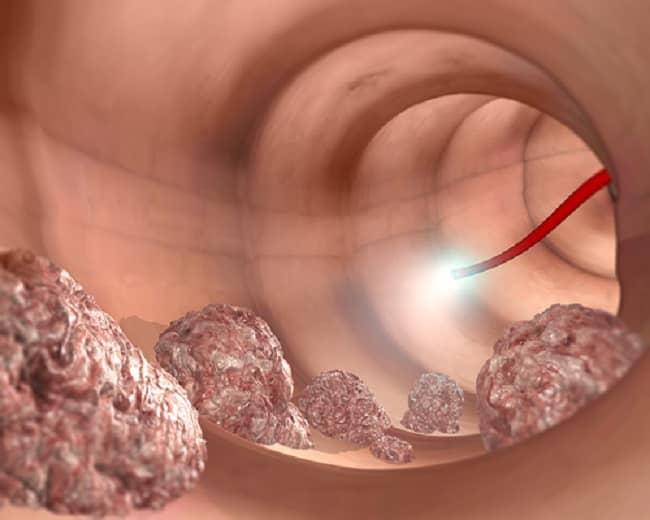 hpv krebs behandlung raceala in piept tratament